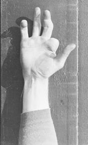 Mordecai Brown Hand